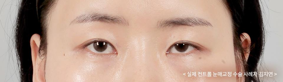실제 컨트롤 눈매교정 수술 사례자 김지연