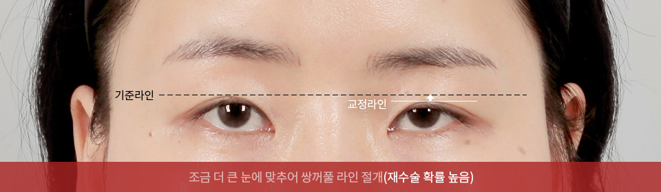 조금 더 큰 눈에 맞추어 쌍꺼풀 라인 절개(재수술 확률 높음)