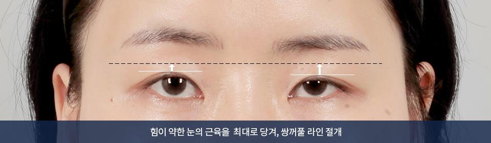 힘이 약한 눈의 근육을 최대로 당겨, 쌍꺼풀 라인 절개