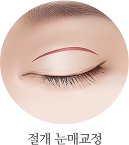절개 눈매교정