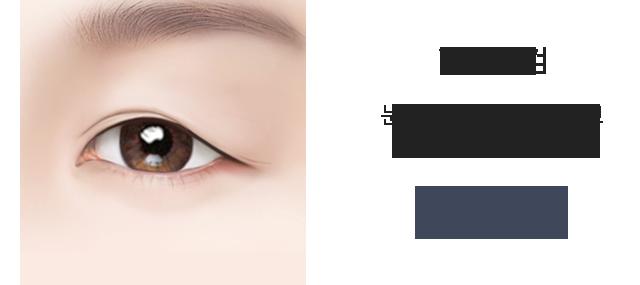 id 상안검