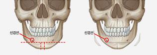 V라인사각턱수술 (T절골술) 학회 발표