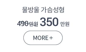 379만원