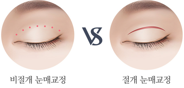 비절개 눈매교정과 절개 눈매교정 비교