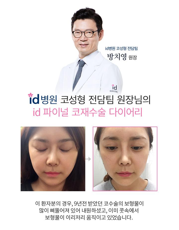 id병원 코성형 전담팀 원장님의 id파이널 코재수술 다이어리